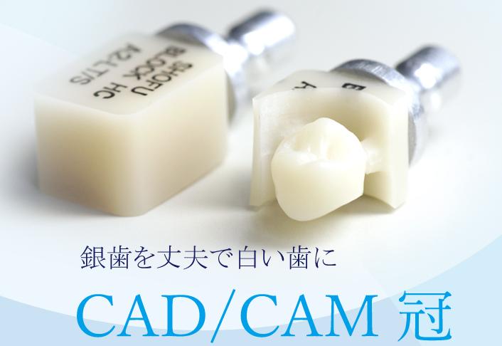 保険適用で出来る白い被せ物(CAD/CAM冠)