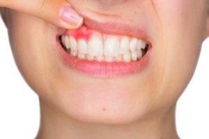 歯の根元の膿